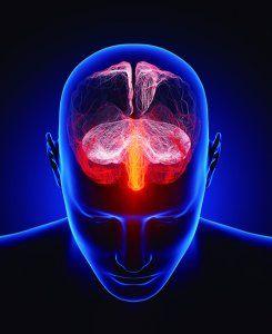 Esclerosis múltiples.