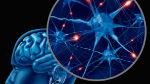 Cirugía de la Epilepsia