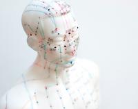 La acupuntura se impone entre los directivos para combatir el estrés