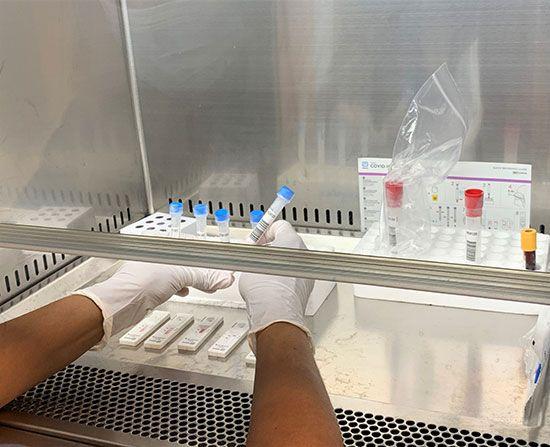 test-rápidos-ANTÍGENOS